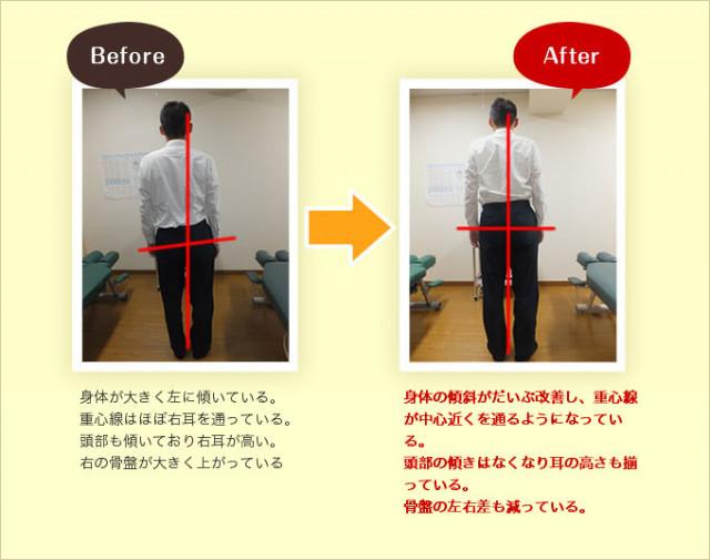 身体の左への大きな傾きが改善し、重心線が中心を通るようになりました。