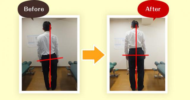 大きく傾いていた身体の傾斜が改善し、重心線が真ん中を通るようになりました。1.施術前:身体が大きく左に傾いている。重心線はほぼ右耳を通っている。頭部も傾いており右耳が高い。右の骨盤が大きく上がっている 2.施術後:身体の傾斜がだいぶ改善し、重心線が中心近くを通るようになっている。頭部の傾きはなくなり耳の高さも揃っている。骨盤の左右差も減っている。