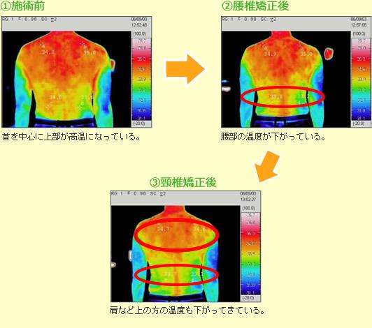 カイロプラクティックの効果をサーモグラフィーで測定したデータ